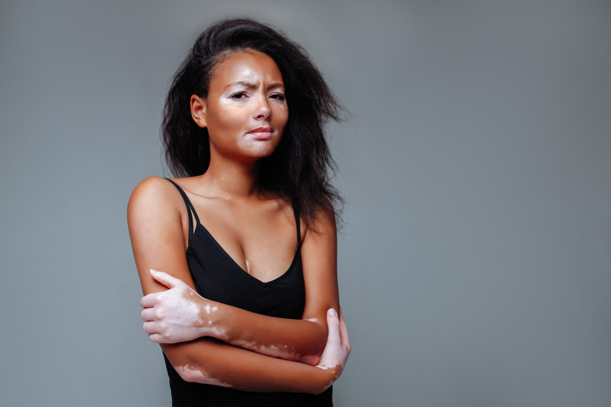 Sắc tố melanin gây da bị lão hóa