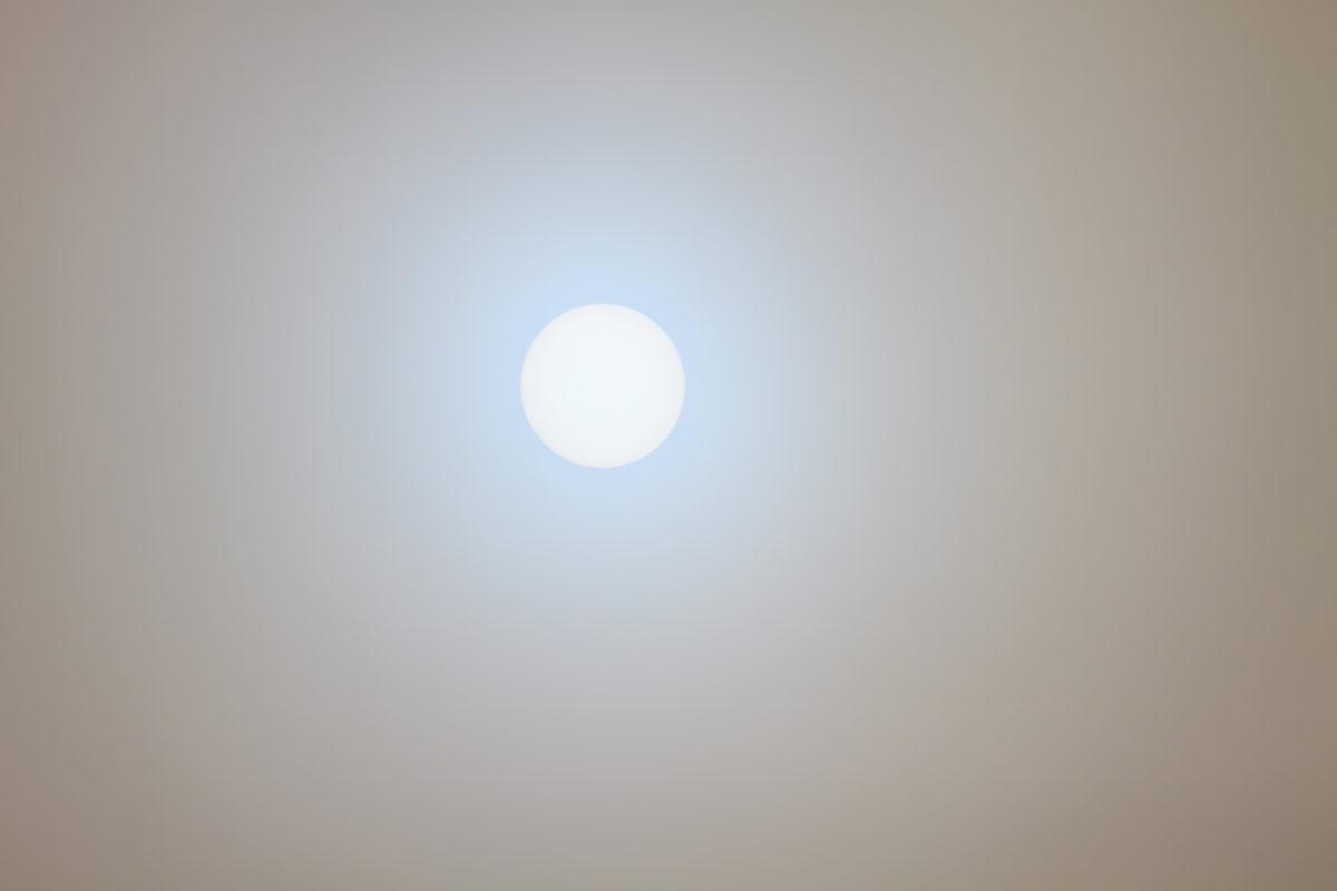 Ánh nắng mặt trời gây nên tia UV khiến da chúng ta bị tổn thương